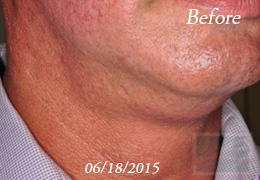 Kybella New Orleans - Case 9, Before