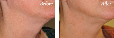 Kybella - Before after gallery image 5