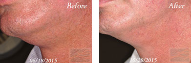 Kybella - Before after gallery image 14