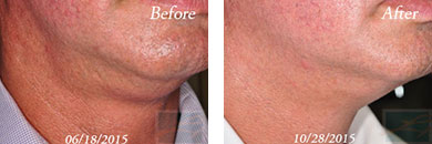 Kybella - Before after gallery image 15