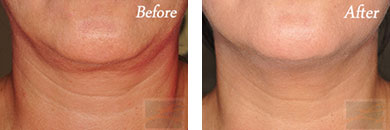 Kybella - Before after gallery image 17