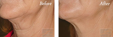 Kybella - Before after gallery image 19