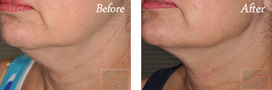 Kybella - Before after gallery image 20