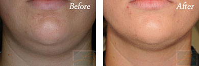 Kybella - Before after gallery image 21