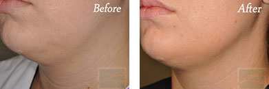 Kybella - Before after gallery image 22