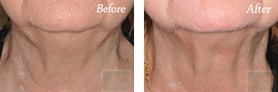 Kybella - Before after gallery image 4