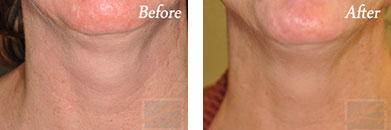 Kybella - Before after gallery image 6