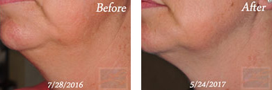 Kybella - Before after gallery image 2