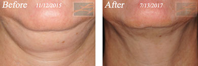 Kybella - Before after gallery image 1