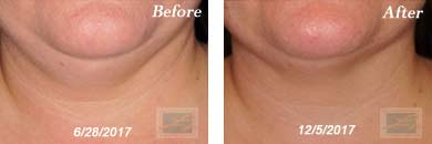 Neck, Abdomen & Chest - Before and After Case 24