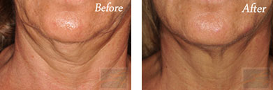 Kybella - Before after gallery image 8