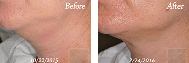 Kybella - Before after gallery image 9