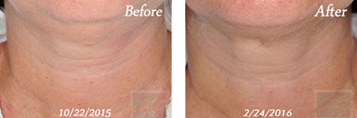Kybella - Before after gallery image 10