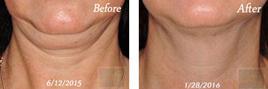 Kybella - Before after gallery image 11