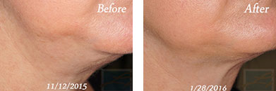 Kybella - Before after gallery image 12