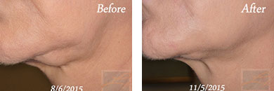 Kybella - Before after gallery image 13