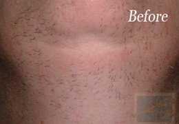 Laser Hair Removal New Orleans - Case 1, Before