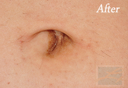 Laser Hair Removal New Orleans - Case 10, After
