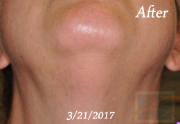 Laser Hair Removal New Orleans - Case 12, After
