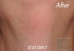 Laser Hair Removal New Orleans - Case 13, After