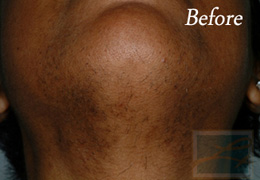 Laser Hair Removal New Orleans - Case 4, Before