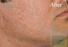 Laser Hair Removal New Orleans - Case 5, After
