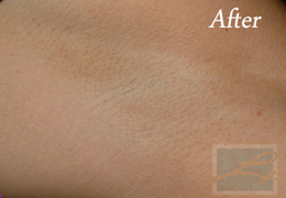 Laser Hair Removal New Orleans - Case 6, After