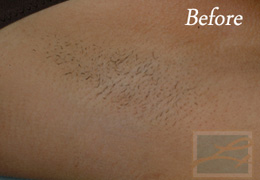 Laser Hair Removal New Orleans - Case 6, Before