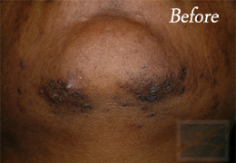 Laser Hair Removal New Orleans - Case 7, Before