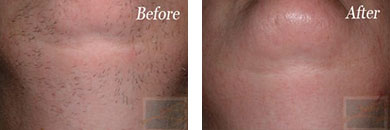 Laser Hair Removal - Before and After Case 6