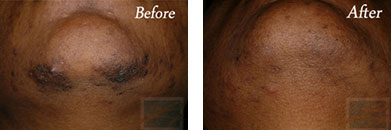 Laser hair removal - Before after gallery image 16