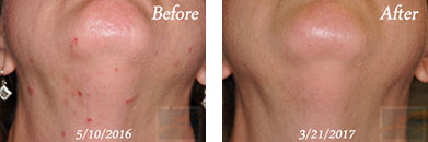 Laser Hair Removal - Before and After Case 4
