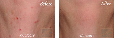 Laser Hair Removal - Before and After Case 5