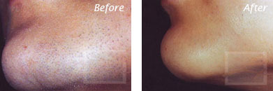 Laser Hair Removal - Before and After Case 11