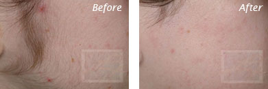 Laser Hair Removal - Before and After Case 13
