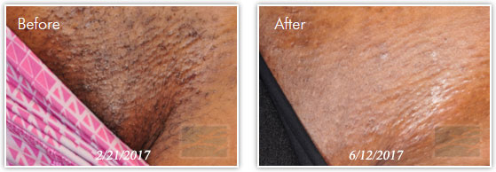 Laser Hair Removal New Orleans - Permanent Hair Reduction ...