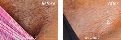 Laser Hair Removal - Before and After Case 3