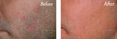 Laser Hair Removal - Before and After Case 7