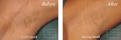 Laser Hair Removal - Before and After Case 1