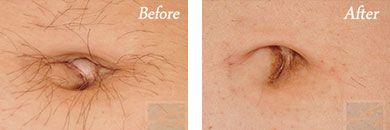 Laser Hair Removal - Before and After Case 9