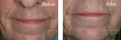 Laser hair removal - Before after gallery image 12
