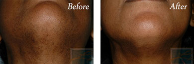 Laser hair removal - Before after gallery image 13