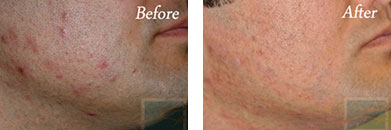 Laser hair removal - Before after gallery image 14