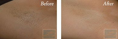 Laser hair removal - Before after gallery image 15