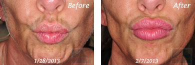Lips - Before and After Case 1