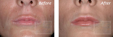 Lips - Before and After Case 10