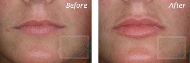Lips - Before and After Case 11