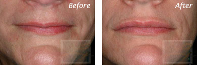 Lips - Before and After Case 13