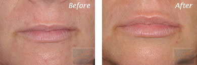 Lips - Before and After Case 15