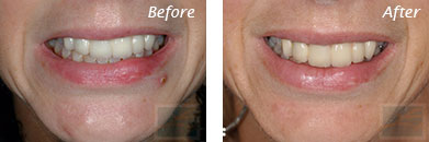 Lips - Before and After Case 18
